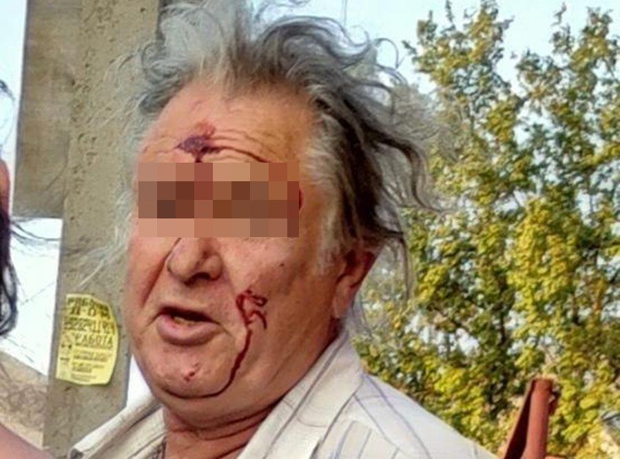 В Новороссийске мужчина избил 11-летнюю девочку за внешний вид